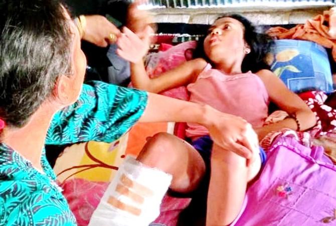TERBARING: Avivatul Aisya, 10, warga Dusun Bettengan, Desa Rabasan, Kecamatan Kedungdung, Sampang, menjadapat jahitan karena luka akibat tertimba tembok.