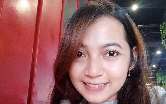Penggunaan berlian pada gigi menambah percaya diri penampilan  Rusita Arismawati.