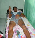 si bahu maupun ligament)<br>    Cedera Elbo (Kesleo pada len
