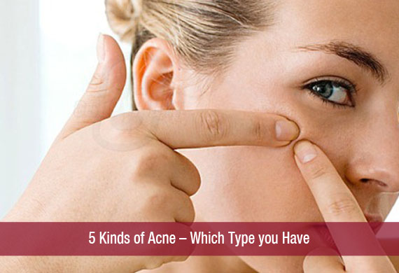 5 Kinds of Acne – Which Type you Have