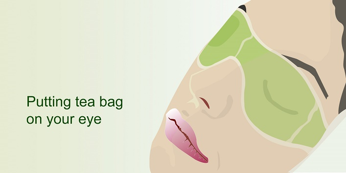 9-putting-tea-bags-on-your-eyes