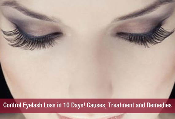 Control Eyelash Loss in 10 Days! Causes, Treatment and Remedies