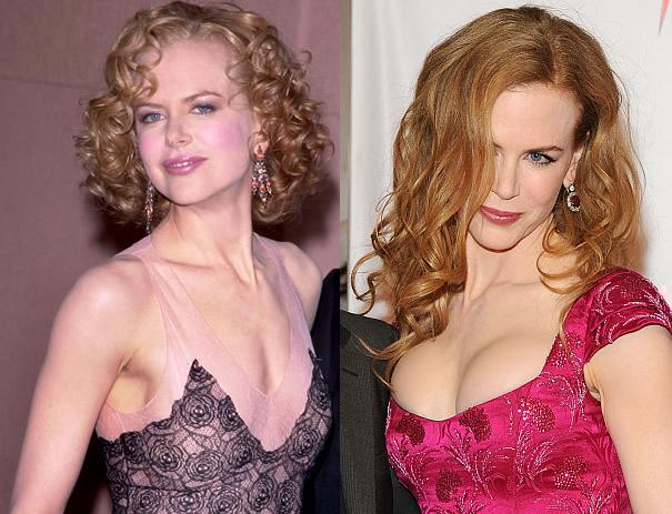 Nicole-Kidman-Before-and-After-Plastic-Surgery-Pictures-4