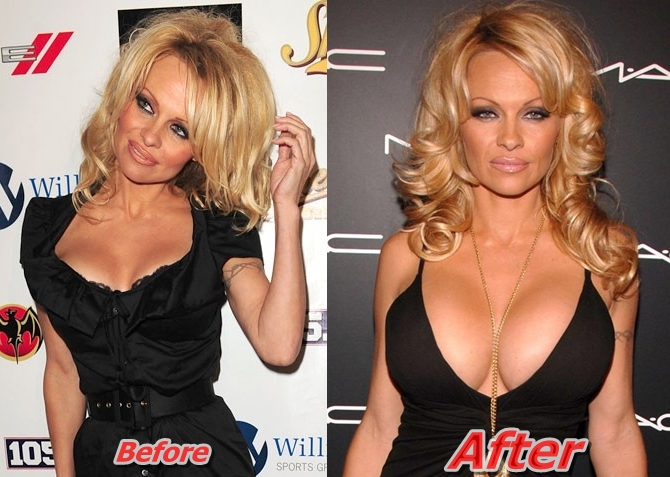 Pamela-Anderson-breast-implants-Surgery-Before-and-After-Boob-Job