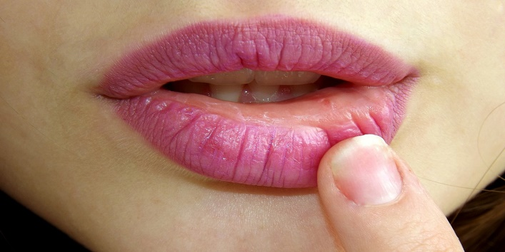 Remedies For Chapped Lips1