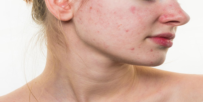 Avoid Popping A Pimple2