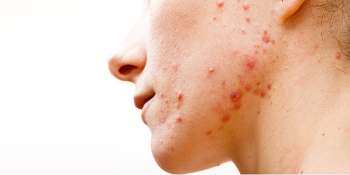 Avoid Popping A Pimple6