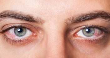 Treat Your Eyes Infections With These 7 Home Remedies