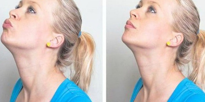 how to do chin lifts