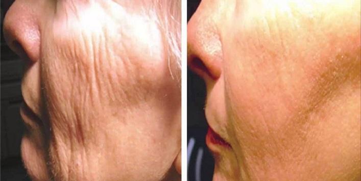 Avoids wrinkles