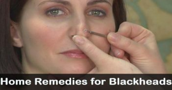 5-Amazing-Home-Remedies-To-Get-Rid-Of-Blackheads-cover