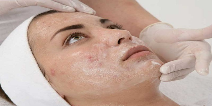 Chemical peel treatment to treat marks