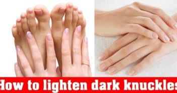 Home Remedies to Lighten Dark Knuckles