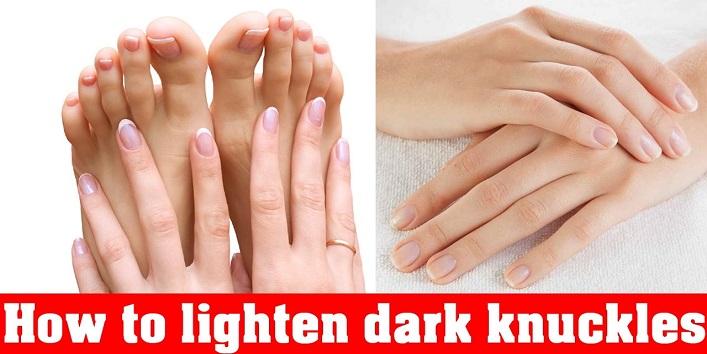 Home Remedies to Lighten Dark Knuckles