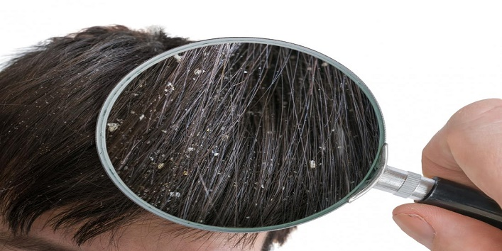DIY-Hair-Masks-for-Beautiful-and-Healthy-Hair-5