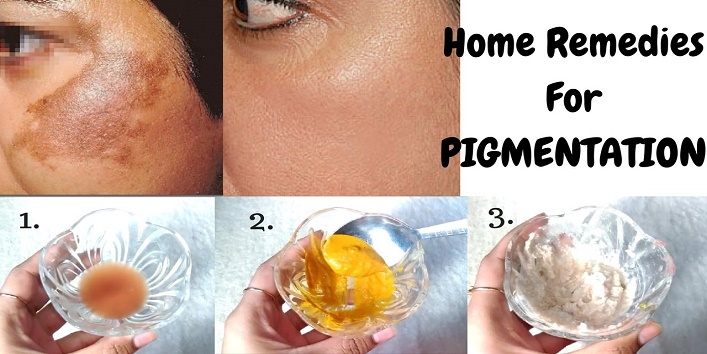 Home-Remedies-to-Treat-Skin-Pigmentation-cover