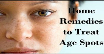 Home Remedies to Treat Age Spots