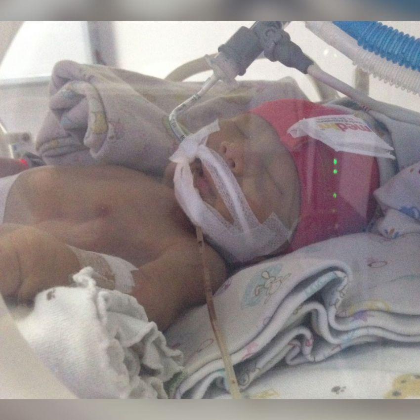 Baby Kilau Pasca Operasi