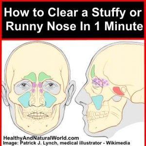 stuffy_nose___20141226085035___.jpg