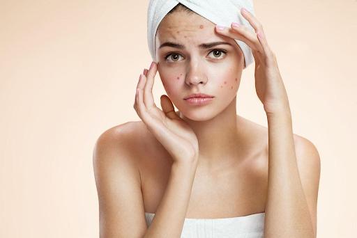 skin care routine - nguyen tac skin care cho da mun