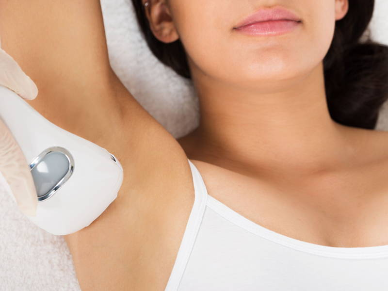 IPL hair removal underarm