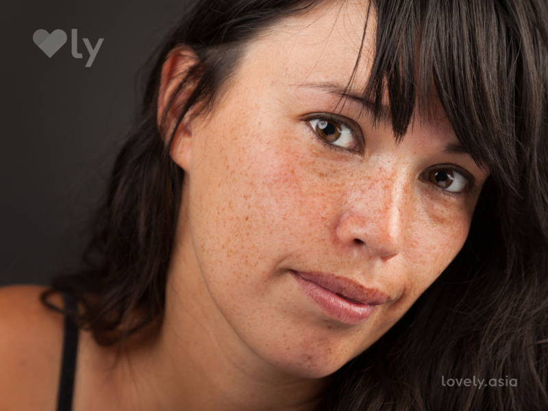 All your questions about freckles and making them work - answered