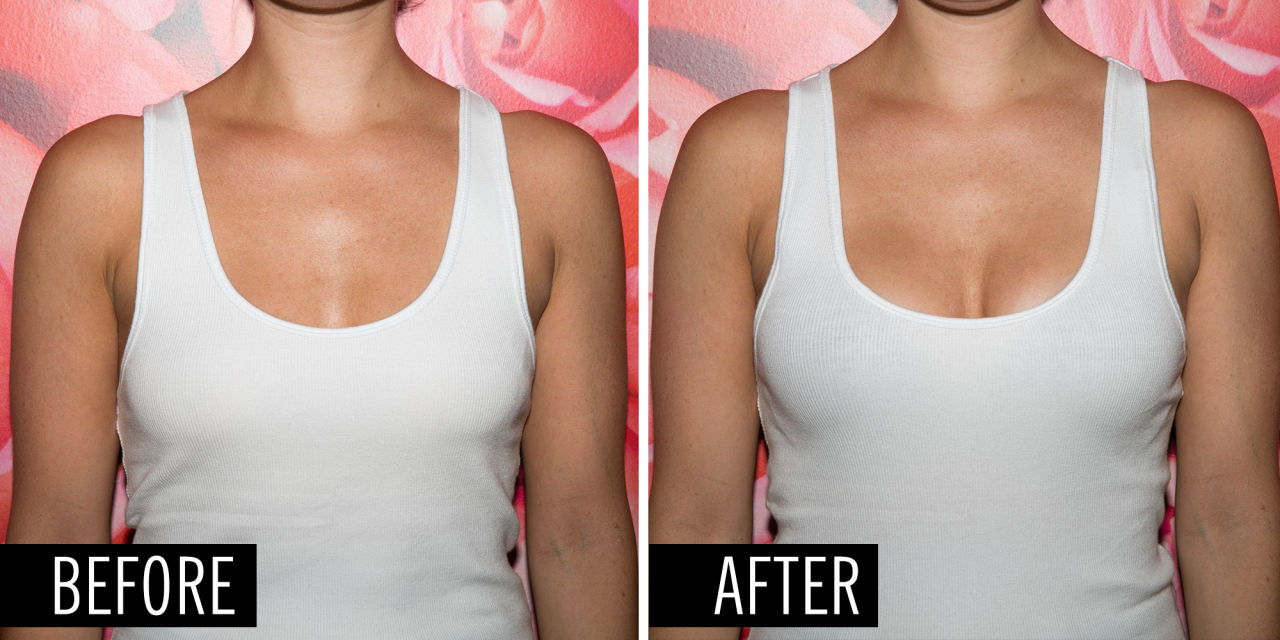 Boob contouring after