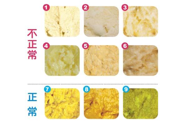 黃金九色卡,判斷寶寶排泄物健康狀況