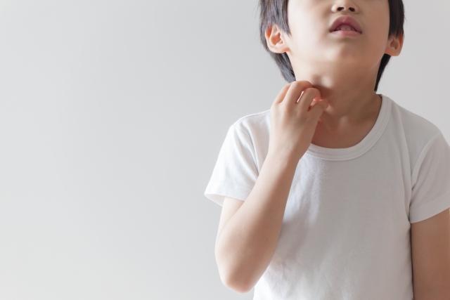 蕁麻疹是一種常見的兒科過敏性皮膚病,發作時皮膚各處會出現又紅又癢的膨疹,有時變化很快,遍布全身模樣看起來很嚇人。