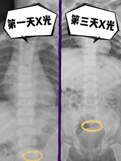 1歲男童因久咳不癒看醫生,吃藥仍不見好轉,照X光後才發現腹部藏了一根訂書針,若再晚點發現恐怕腸穿孔…