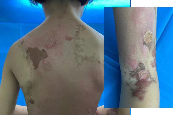 女童到院時全身又癢又痛,幾乎沒有一塊皮膚是正常的,經醫生檢驗後發現,女童因接觸過多環境中的殺蟲劑,誘發「大疱性接觸性皮膚炎」