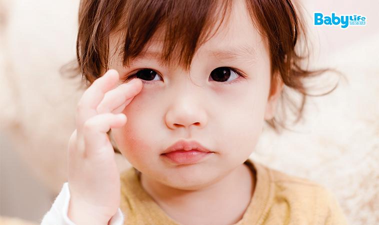 惱人的針眼,如何治療與照顧?