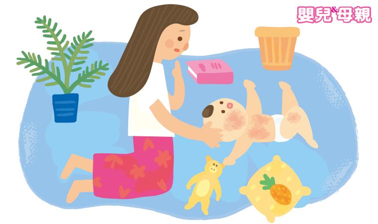 皮膚搔癢、反覆濕疹發作 如何照顧患有異位性皮膚炎的寶寶?