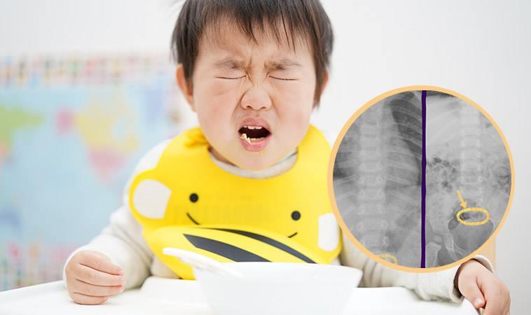1歲童咳嗽不止竟是誤食「訂書針」惹禍!這些物品要小心