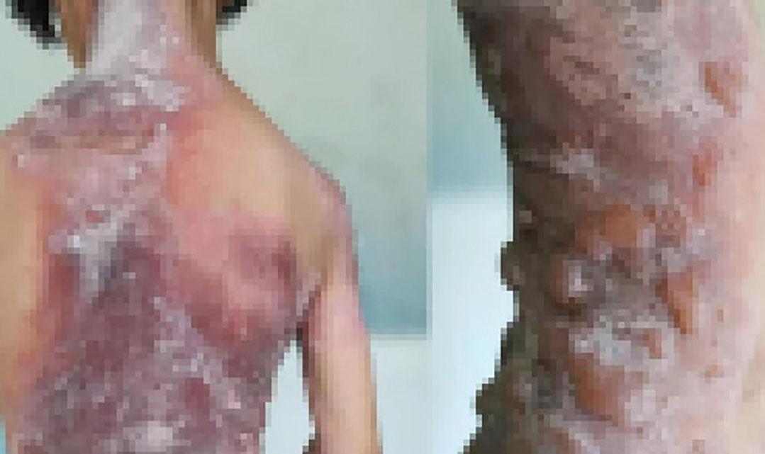 外婆一舉動 竟造成女童全身皮膚潰爛