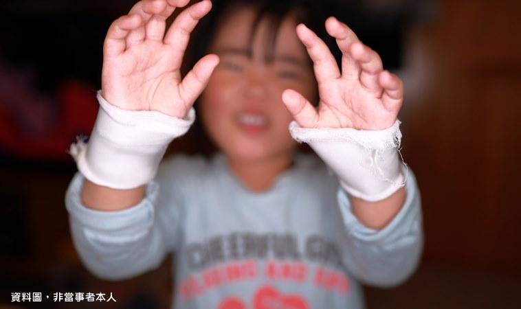 怎麼下得了手?3歲女童遭媽媽同居人虐打致死!