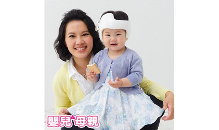 寶寶頭型不正,怎麼矯正?