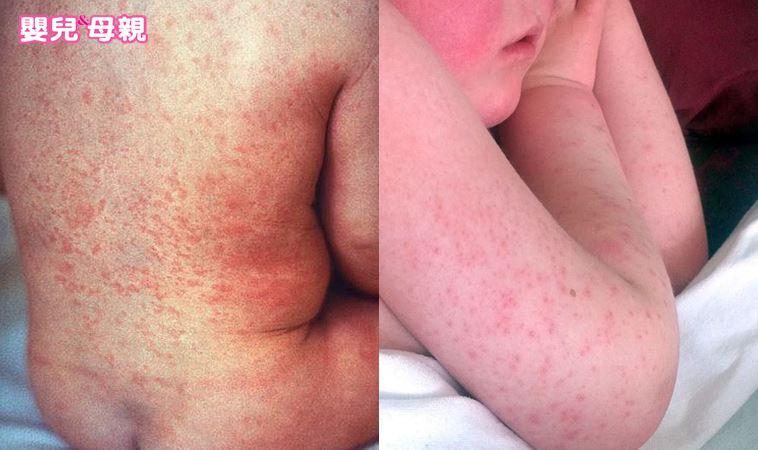 女童全身紅疹原來是「它」害的!這5種常見植物孩子千萬不能碰
