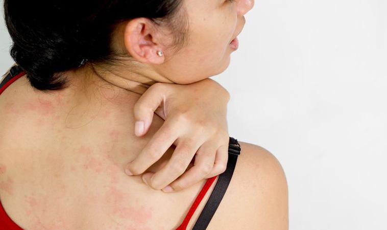 孩子老是皮在癢 談異位性皮膚炎保養