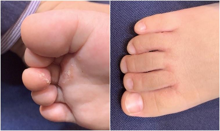 2歲幼童得香港腳,竟是阿公赤腳踩地害的?!