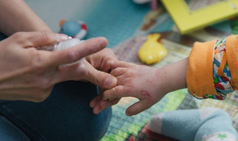 孩子濕疹吃益生菌、抹蛋黃油能治好?中西醫合力解迷思,教你這3招按摩式防濕疹