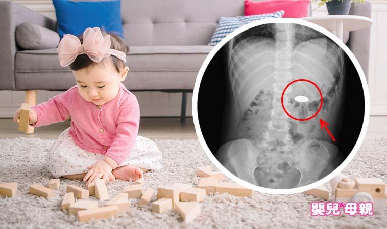 女童以為誤吞硬幣,急診醫驚,吞的是危險性極高的…