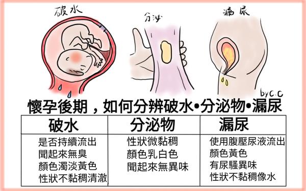 懷孕後期,如何分辨破水、分泌物、漏尿!?
