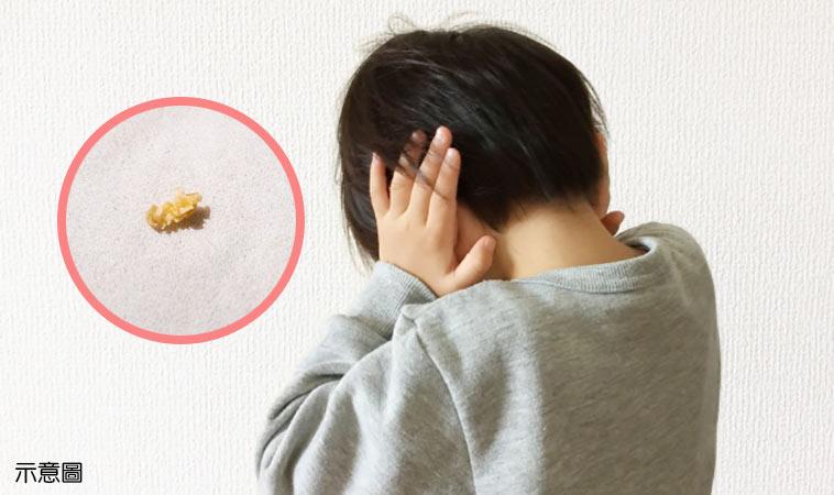 男童注意力不集中,竟是卡4年的巨大耳屎影響聽力