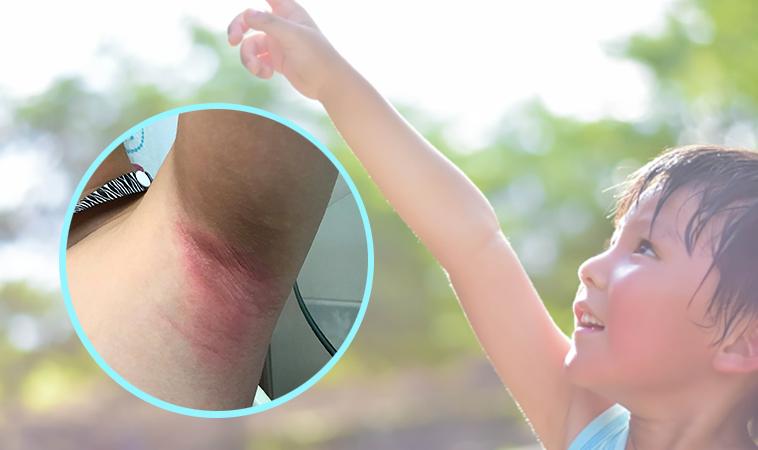 秋老虎發威!男童腋下磨出大片紅疹、破皮癢痛