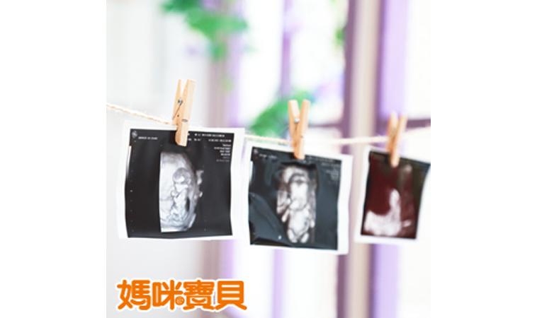 從產檢到生產,選擇適合的醫師&醫院