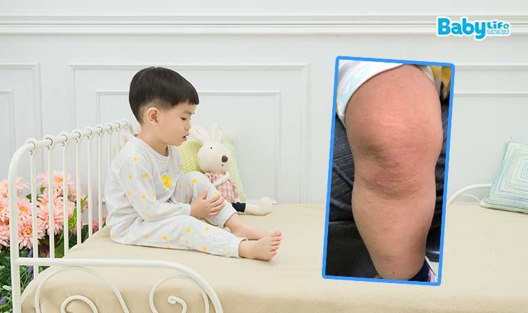 小孩手腳長疹子?小心得了丘疹性肢端皮炎
