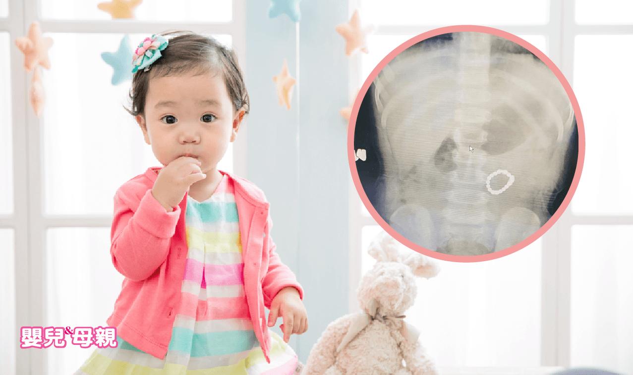 1歲童因腸病毒就醫,竟發現18顆巴克球藏肚內