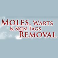 Moles Warts Removal Coupons & Promo codes