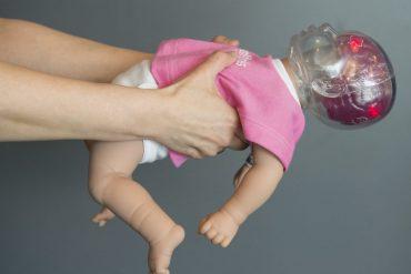 รู้จักกับ Shaken Baby Syndrome